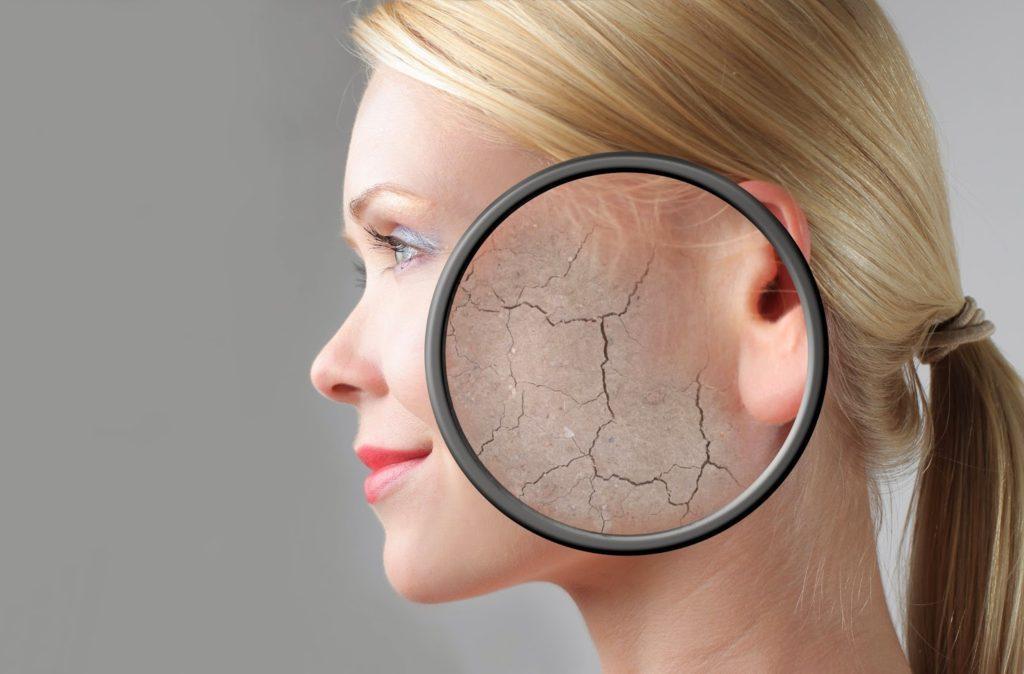 5 bệnh phổ biến về da khi không dùng kem chống nắng.